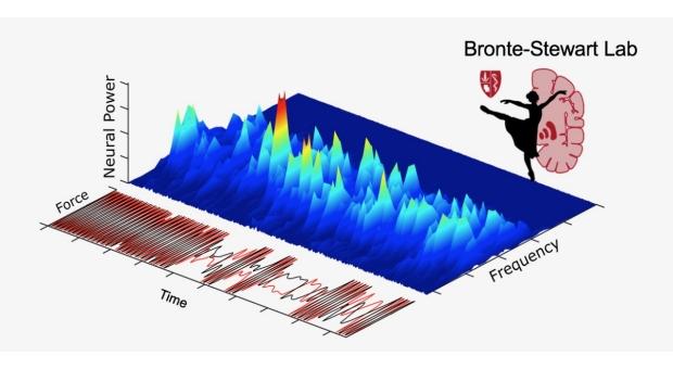 Bronte-Stewart Lab