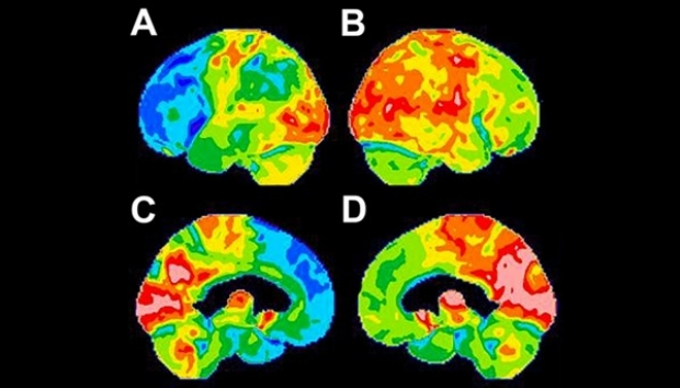 FDG-PET Scan Features of bvFTD