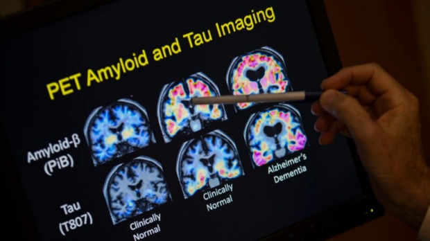 Pet Amyloid and Tau Imaging