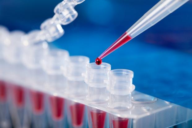 Stanford Neurometabolic Clinic and Neurogenomics Program