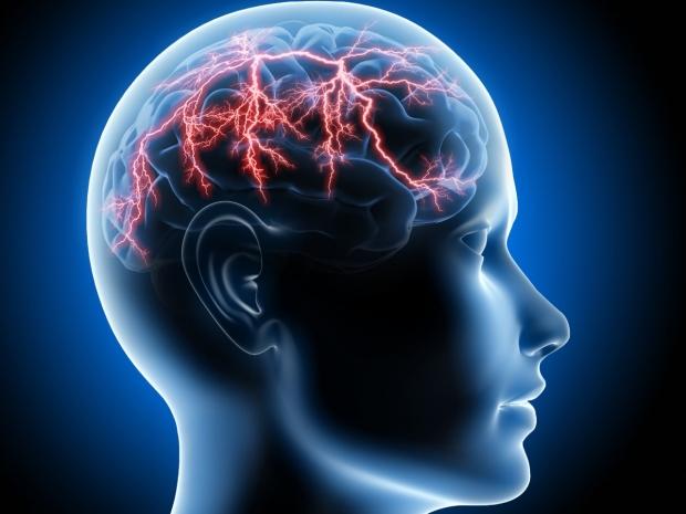 Stroke/Vascular Neurology
