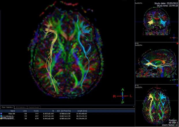 Functional Neurosurgery banner