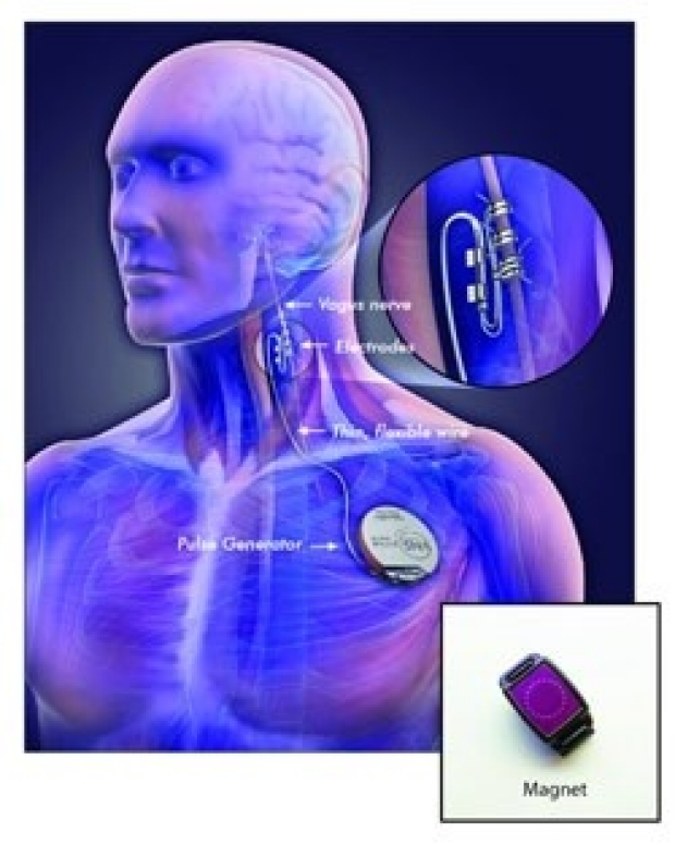 Stanford epilepsy surgery Vagus Nerve Stimulation device drawing