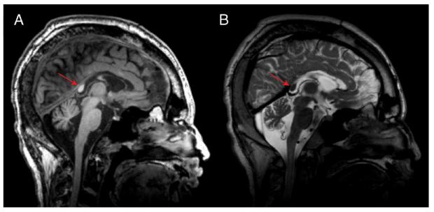 MRI image of callosotomy