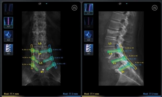 Neurosurgery_neurospine_robotics_scan_spine