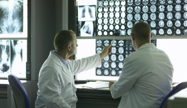 Doctors looking at x-rays of brain and spine
