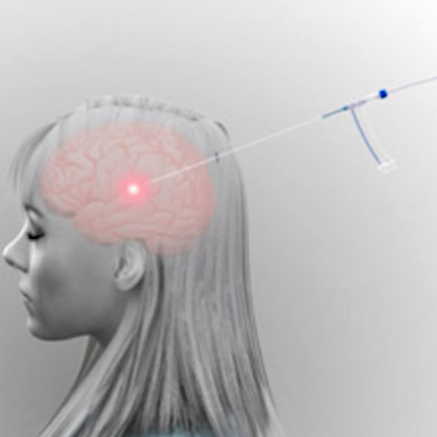 Computer-generated graphic of Visualase laser on woman