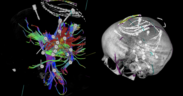 tractography for epilepsy
