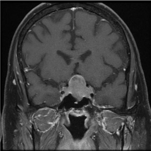 neurosurgery_pituitary_JFM_SurgicalTechnique_slide6_A