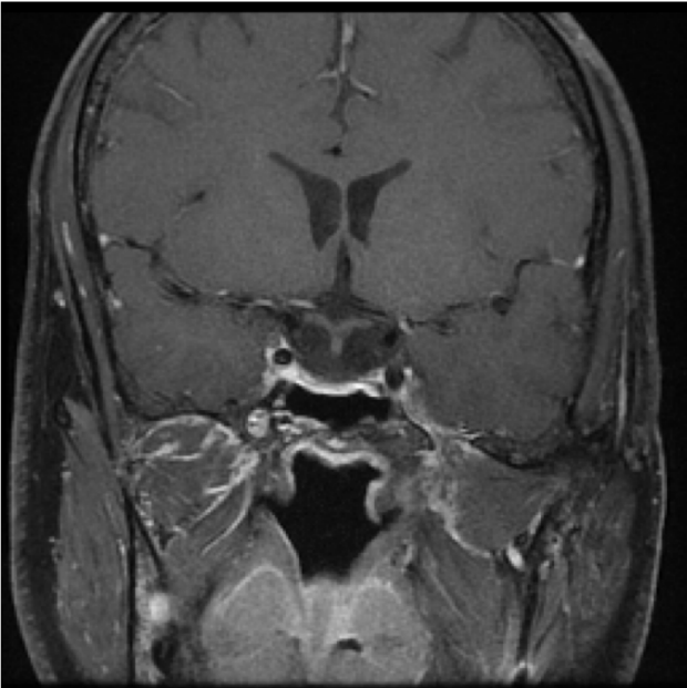 neurosurgery_pituitary_JFM_SurgicalTechnique_slide6B