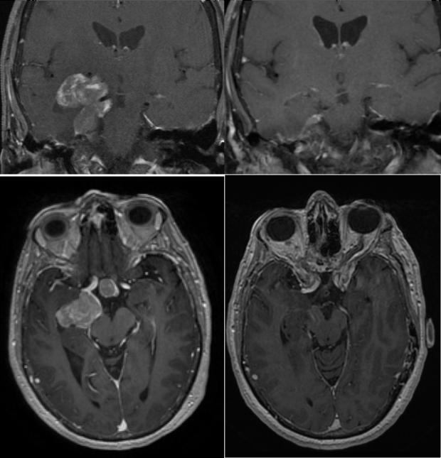 neurosurgery_pituitary_JFM_SurgicalTechnique_slide8