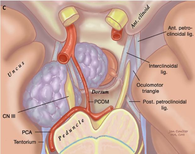 neurosurgery_Pituitary_Transcranial_C