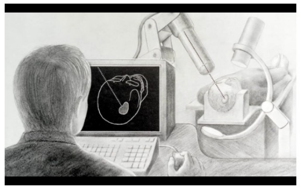 cyberknife concept drawing by Dr. John Adler