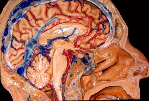 neuroanatomy fiber tractography stanford