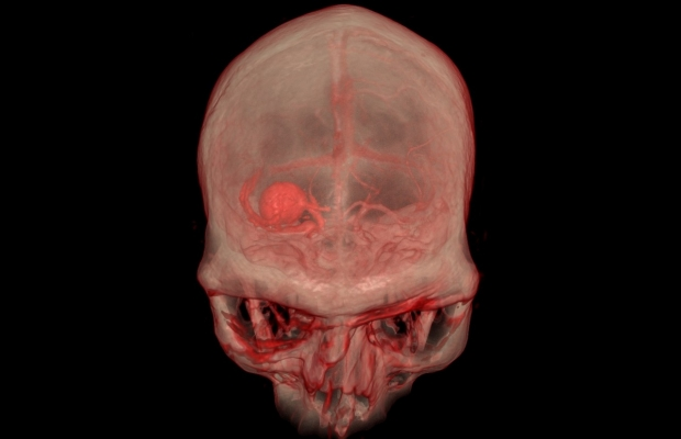 3D image of an aneurysm in the VR Lab