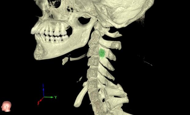 Image of pediatric cervical spine tumor in VR Lab