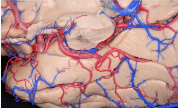 neurosurgery_research_lab_SNFTVR_JFM_Picture16