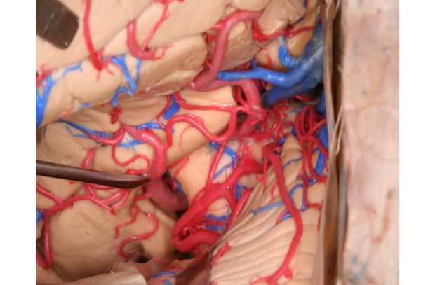 neurosurgery_research_lab_SNFTVR_JFM_Picture17