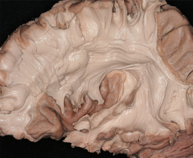 neurosurgery_research_lab_SNFTVR_JFM_Picture18