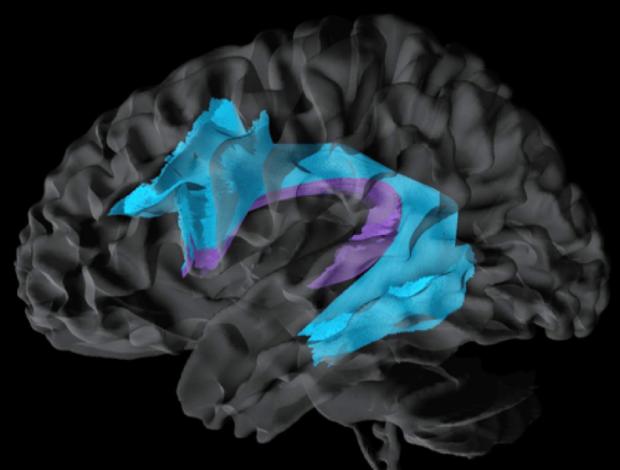 neurosurgery_research_lab_SNFTVR_JFM_Picture19