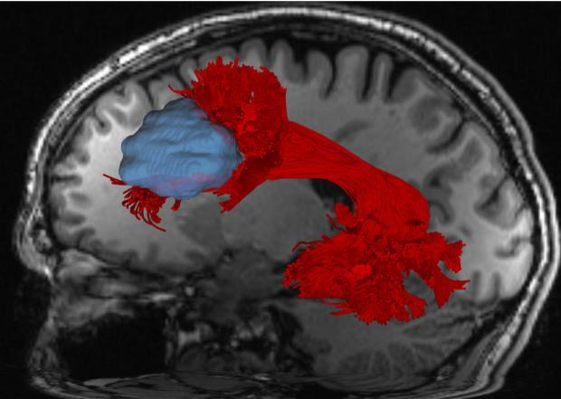 neurosurgery_research_lab_SNFTVR_JFM_Picture20