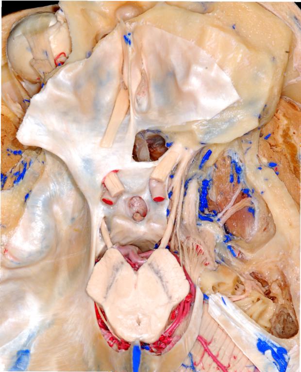 neurosurgery_research_lab_SNFTVR_JFM_Picture1