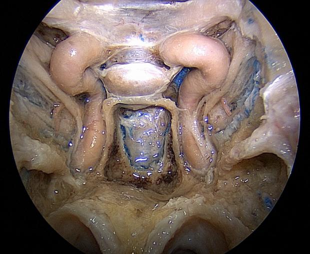 neurosurgery_research_lab_SNFTVR_JFM_Picture11