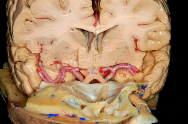 neurosurgery_research_lab_SNFTVR_JFM_Picture3