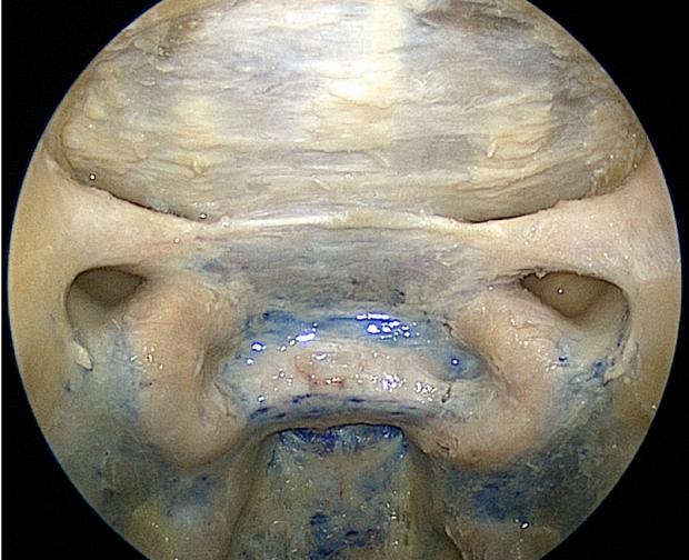 neurosurgery_research_lab_SNFTVR_JFM_Picture6