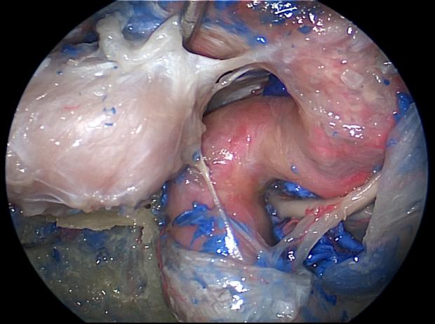 neurosurgery_research_lab_SNFTVR_JFM_Picture7