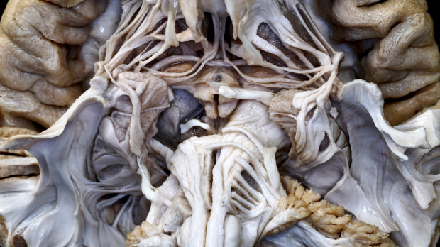 stanford fiber tractography