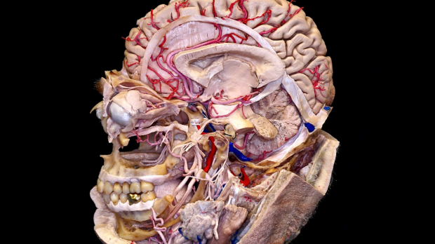 microsurgical neuroanatomy image