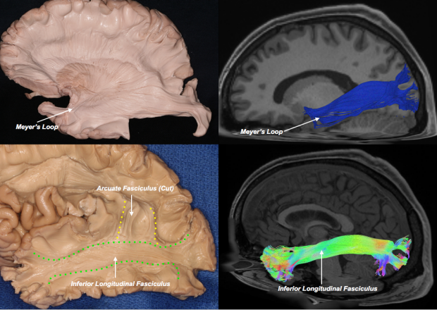 neurosurgery_research_labs_tractography_Figure-11