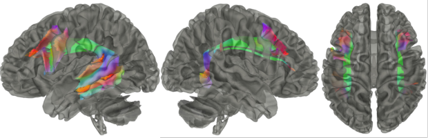 neurosurgery_research_labs_tractography_Figure-12