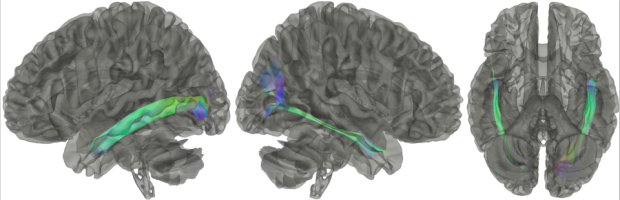 neurosurgery_research_labs_tractography_Figure-17