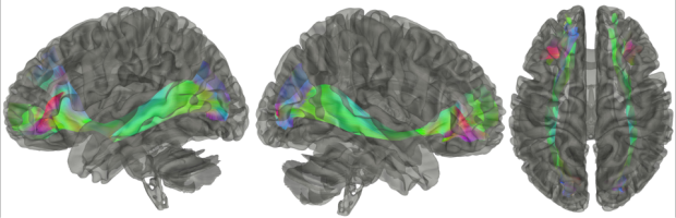 neurosurgery_research_labs_tractography_Figure-14