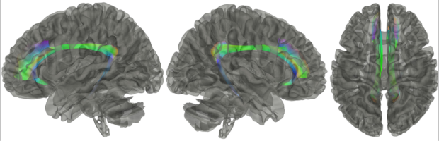 neurosurgery_research_labs_tractography_Figure-19
