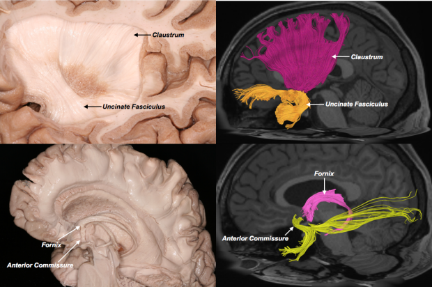 neurosurgery_research_labs_tractography_Figure-10B