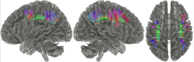 neurosurgery_research_labs_tractography_Figure-13