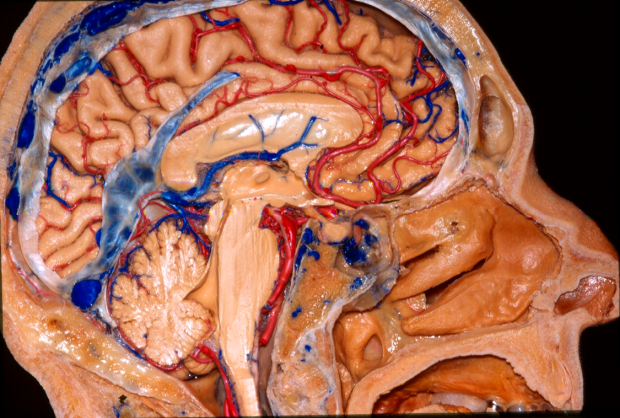 stanford neuro anatomy fiber tractography and virtual reality lab