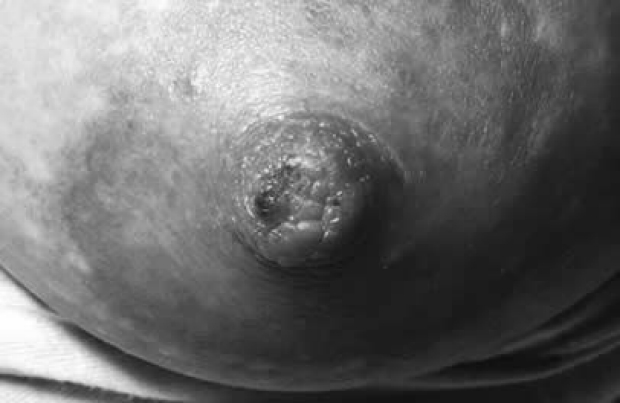 Nipple trama