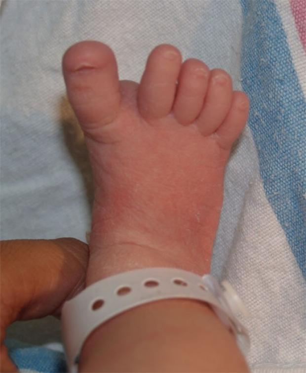 Sandal Gap Deformity