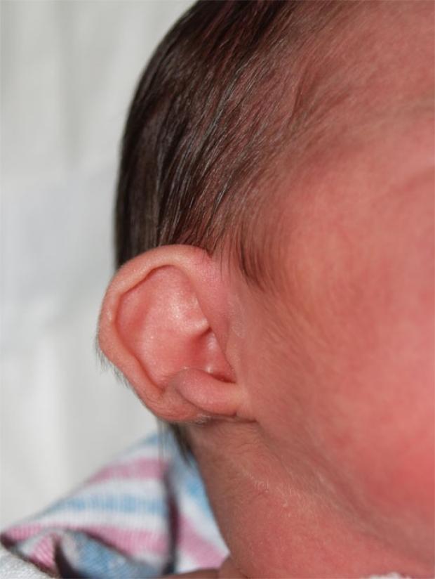 Cup Ear