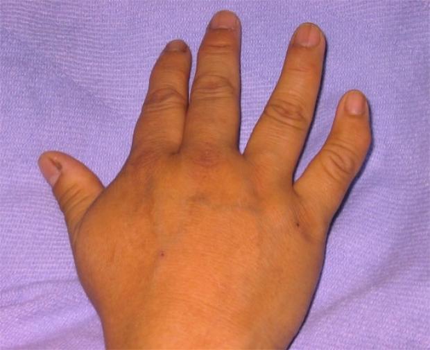 Clinodactyly