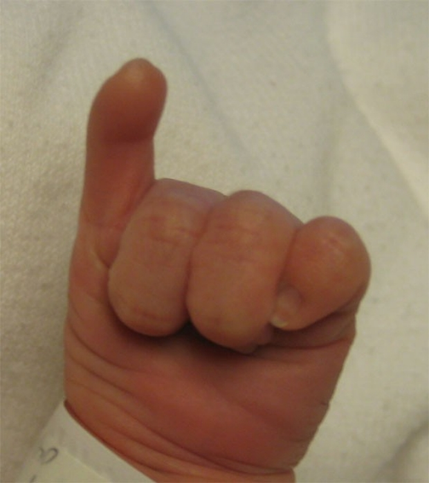 Thumb Aplasia