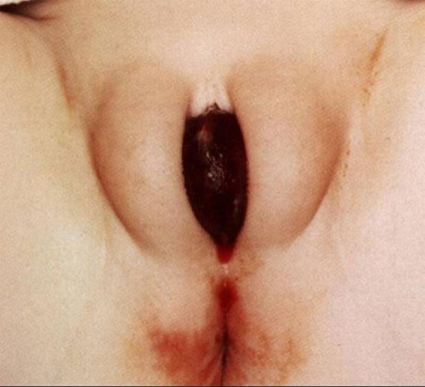 Prolapsed Ureterocele