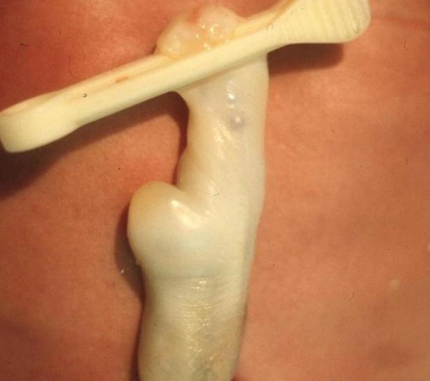 Umbilical Cord Hematoma