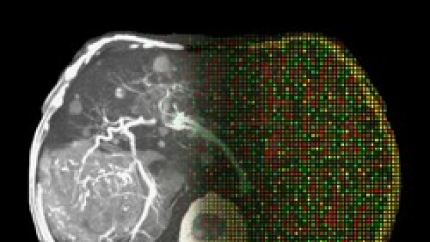 'Star Trek'-type scanning may reveal genetic activity of tumors, Stanford study shows