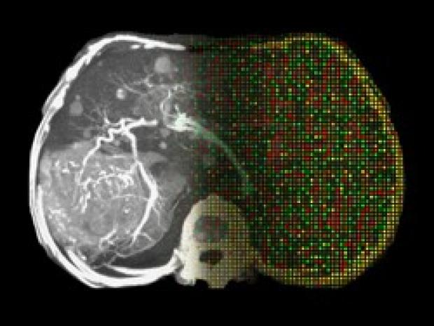 'Star Trek'-type scans may reveal tumor genetics