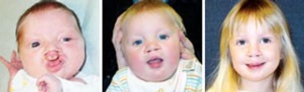Packard Children's surgeons repair deformities of face, neck, skull